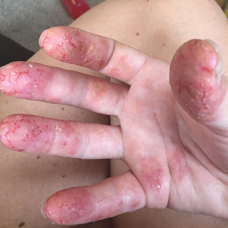 the early stages of my extreme eczema began on my fingertips at about one month postpartum | the love designed life
