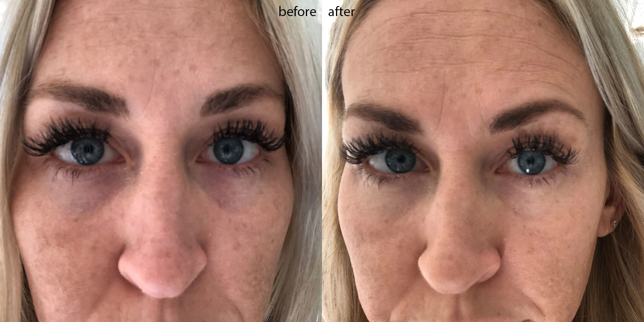 actual results from the olay brightening eye cream. up close and personal with my tired mom eyes | thelovedesignedlife.com #olayeyes #beforeandafter #darkcircles